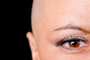 Queda-de-cabelo-quimioterapia